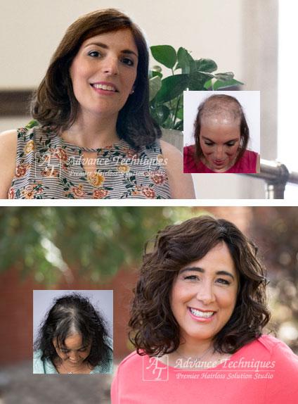 female hair loss replacement richmond virginia