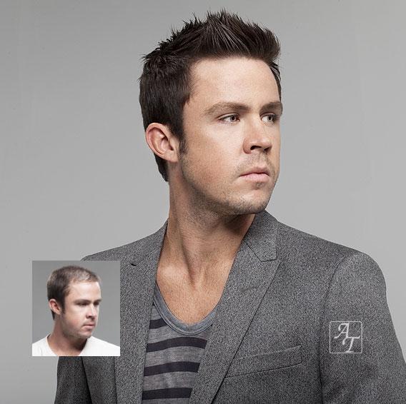 Mens Hair Loss Restoration Richmond Virginia