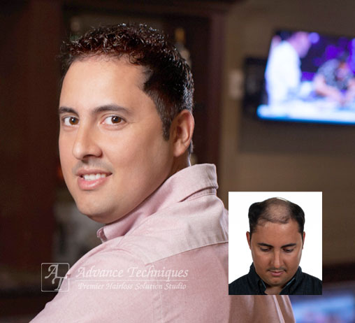 Male Hair Loss Replacement Richmond Virginia