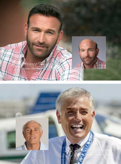 richmond mens hair loss replacement virginia