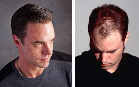virtual reality non-surgical hair replacement richmond virginia