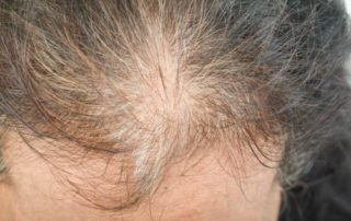scarring alopecia women richmond va
